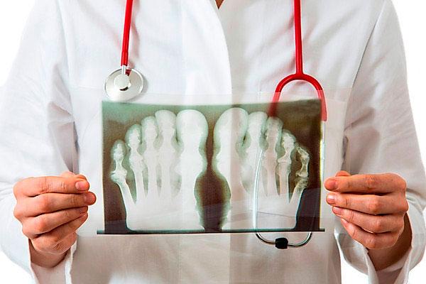 Подагра – это артрит или артроз, в чем разница и сходство заболеваний
